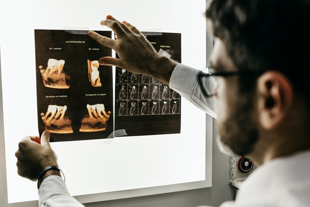 Zobni rentgen za temeljit vpogled v zobe